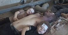 Victims Of Chemical Warfare In Syria